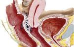 Лечение ретроцервикального эндометриоза беременностью