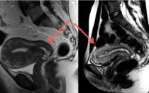 Показывает ли мрт малого таза эндометриоз