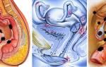 Если эндометриоз и беременность