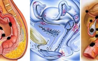 Спайки и эндометриоз как забеременеть